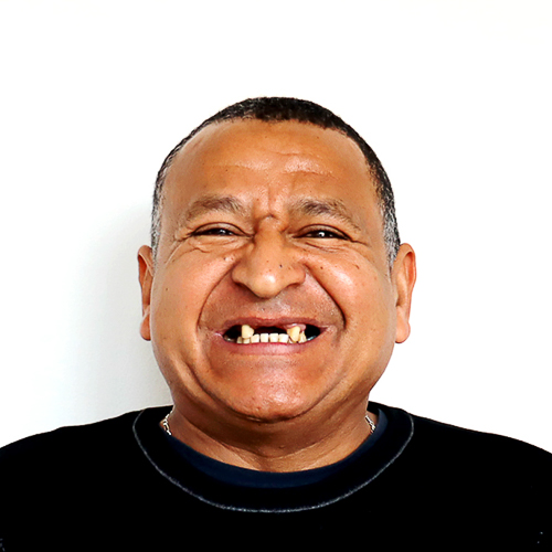 Acioly-antes-implantes-dentarios-final
