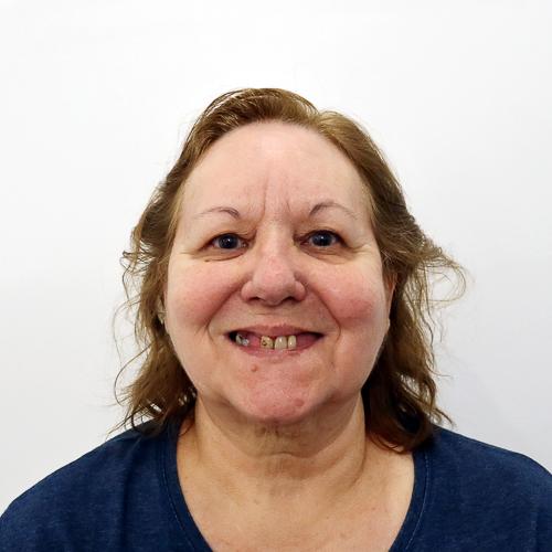 Esmaraldina-Antes-implantes-dentarios-1_012a7bdb642ac1a7499ad765358064f6