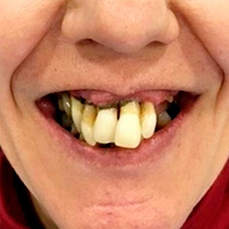 caso-clinica-antes-clinica-dentart-final