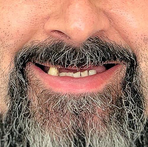 caso-clinico-antes-clinica-dentart-implantes-dentarios-final