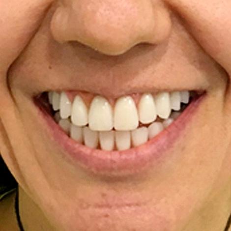 caso-clinico-depois-clinica-dentart-final