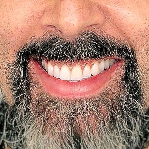 caso-clinico-depois-clinica-dentart-implantes-dent-final